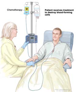 Drawing of a health care provider giving a patient treatment to kill blood-forming cells. Chemotherapy is given to the patient through a catheter in the chest.