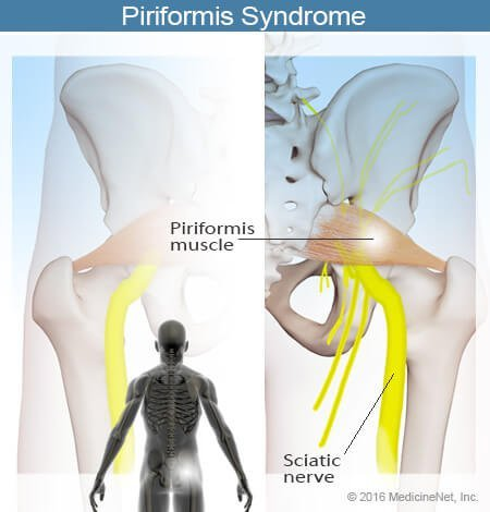 Picture of the piriformis muscle and sciatic nerve