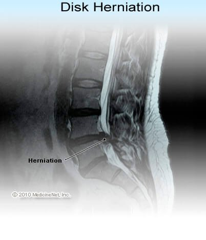 Cross-section (side view picture) of herniated disc between L4 and L5 (the forth and fifth lumbar vertebrae)