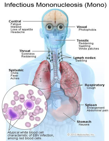 Infectious Mononucleosis Symptoms and Signs
