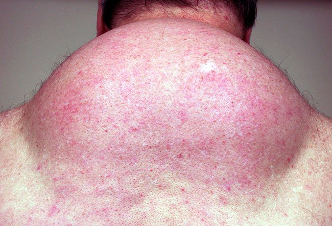 Picture of HIV Lipodystrophy