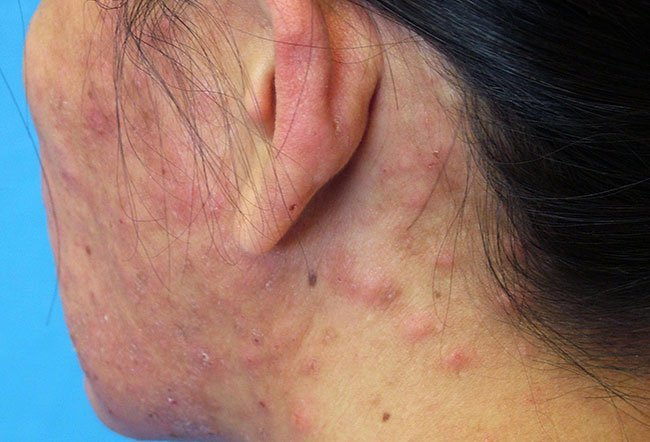 Pictures of Bacterial Skin Diseases and Problems - Impetigo