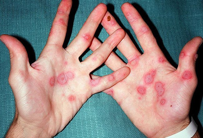 Picture Of Skin Diseases And Problems Erythema Multiforme