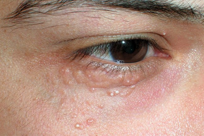 Picture of Skin Diseases and Problems – Granuloma Annulare
