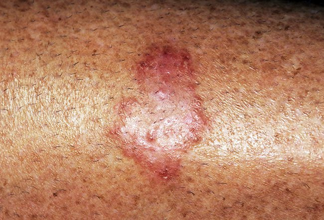 Pictures of Fungal Skin Diseases and Problems - Ringworm