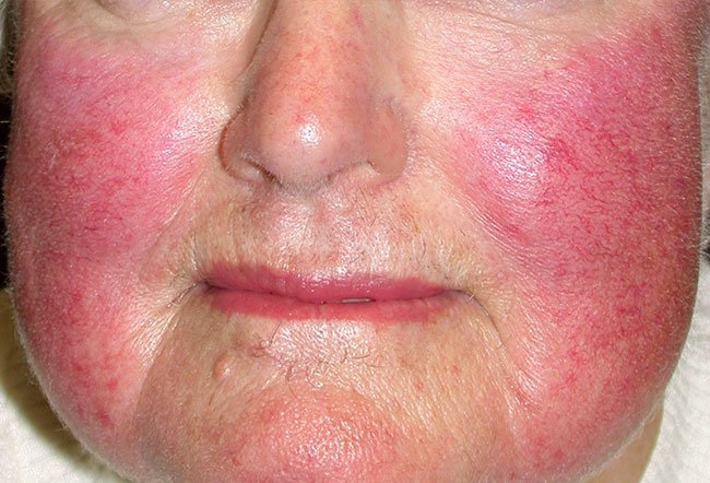 Picture Of Skin Diseases And Problems Rosacea 2
