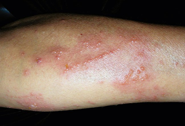 Pictures of Allergic Skin Diseases and Problems - Eczema