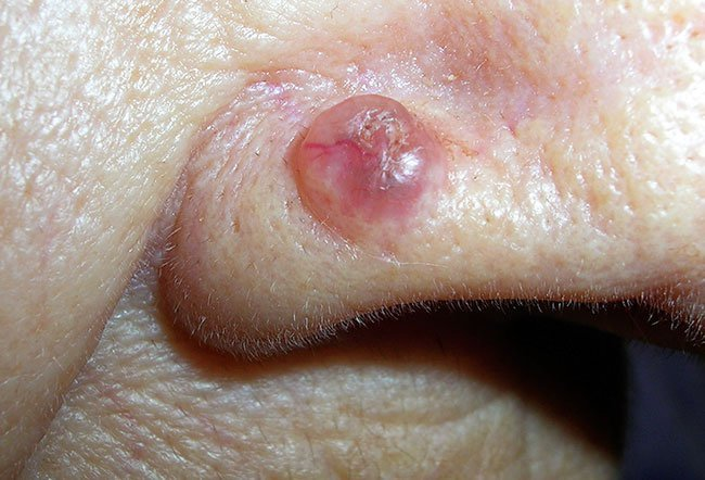 Pictures of Skin Diseases and Problems - Basal Cell
