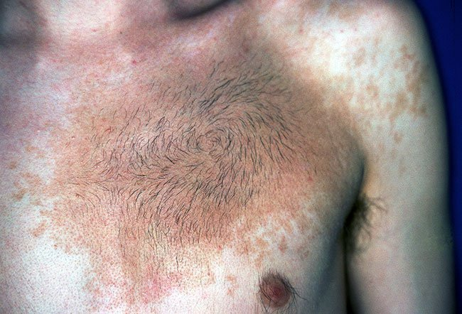Picture Of Skin Diseases And Problems Becker S Nevus