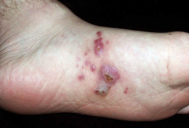 Pictures of Viral Skin Diseases and Problems - Herpetic Whitlow