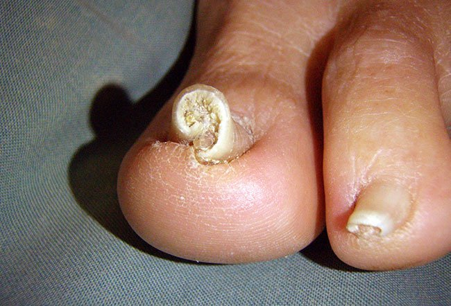 Pictures of Nail Diseases and Problems - Discoloration of Nail Plates