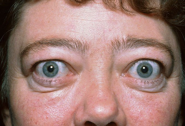 Pictures of Autoimmune Diseases and Problems - Graves' Disease