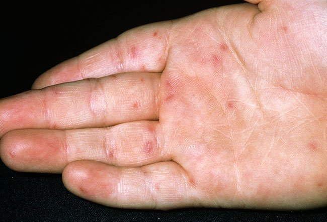 hand foot and mouth disease picture image