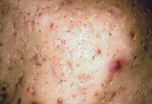 Pictures of Skin Diseases and Problems - Acne