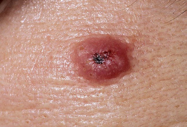 Picture of Keratoacanthoma (1 of 2)