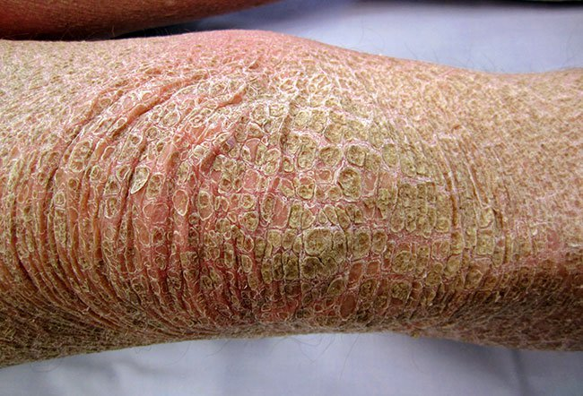 Picture of Lamellar Ichthyosis Arms