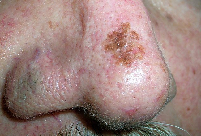 Picture of Skin Diseases and Problems - Seborrheic Keratosis