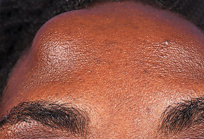 Pictures Of Skin Diseases And Problems Lipoma