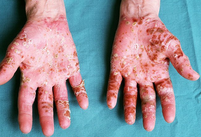 Picture of Skin Diseases and Problems – Lichen Planus 2