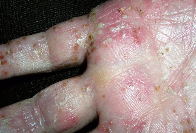 Picture Of Skin Diseases And Problems Palmoplantar