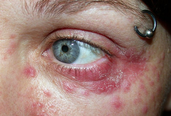 Picture Of Skin Diseases And Problems Periorbital Dermatitis