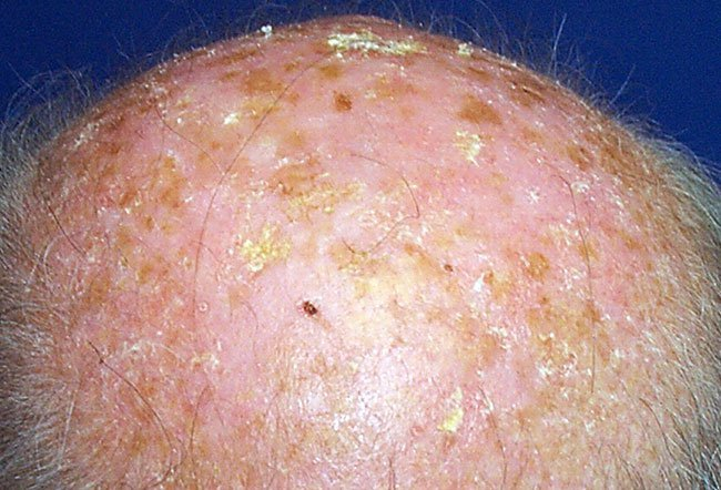 Picture Of Skin Diseases And Problems Solar Keratosis