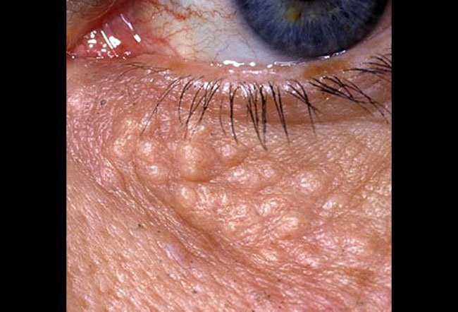 Pictures of Skin Diseases and Problems – Cutaneous Horns
