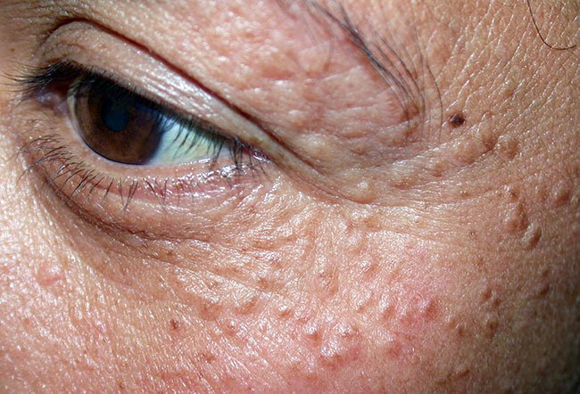 Picture of Skin Diseases and Problems - Squamous Cell