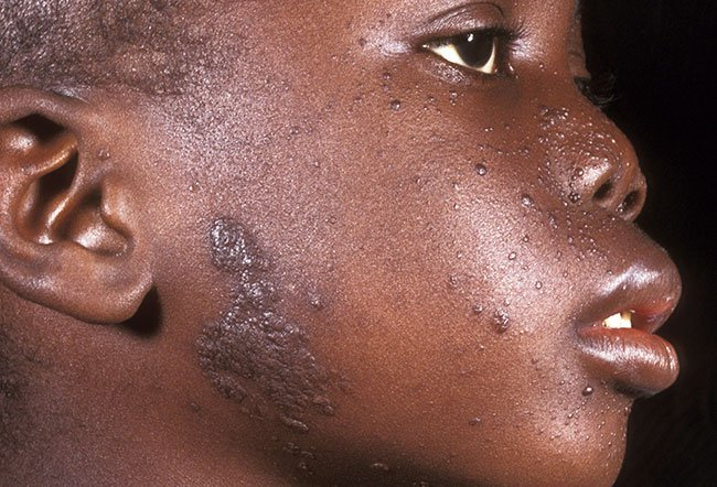 Picture of Skin Problems – Fordyce's Condition