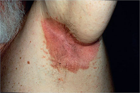 Picture of inverse psoriasis affecting the armpit.