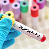 How Do You Get Hepatitis A, B, and C?