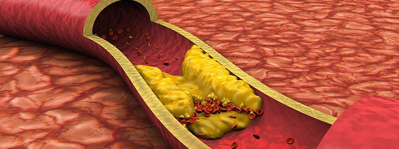 What Causes High Cholesterol? Symptoms, Levels & Diet