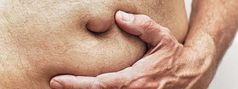 Hiatal Hernia: Symptoms, Surgery, Diet, Treatment & Causes