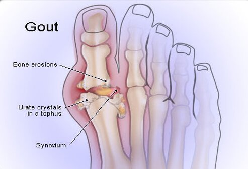 Alcohol can aggravate existing cases of gout.