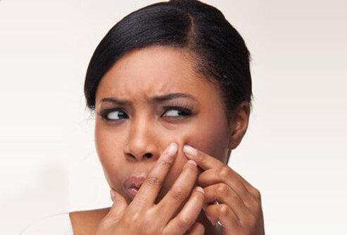 A woman attempts to pop a pimple on her cheek.