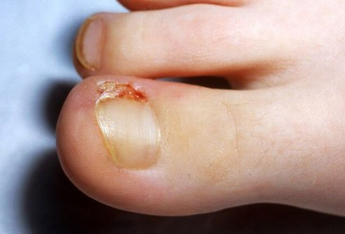 This is when the edge of your toenail curves down and gets trapped in your skin.