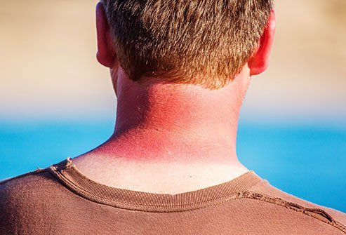 Avoid the sun's strongest rays during the middle of the day.