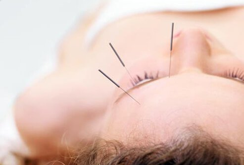 Photo of acupuncture.