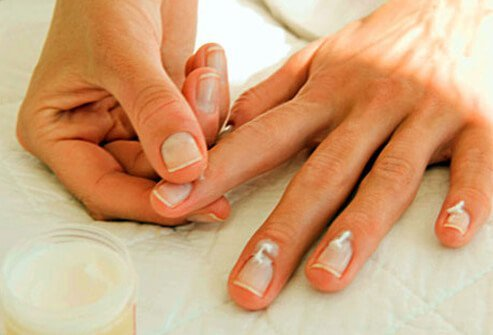 Photo of woman putting lotion on nails.