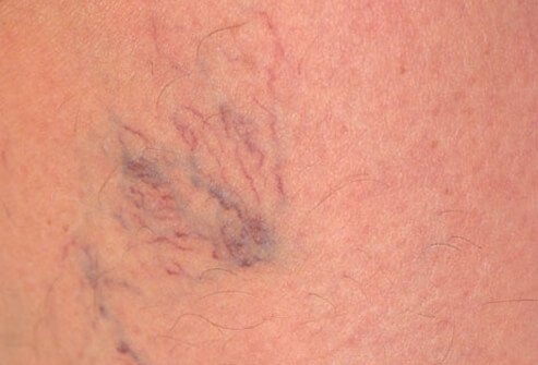 Vericose veins on a woman's leg.