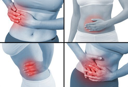 Pictures show the varying locations of abdominal pain.
