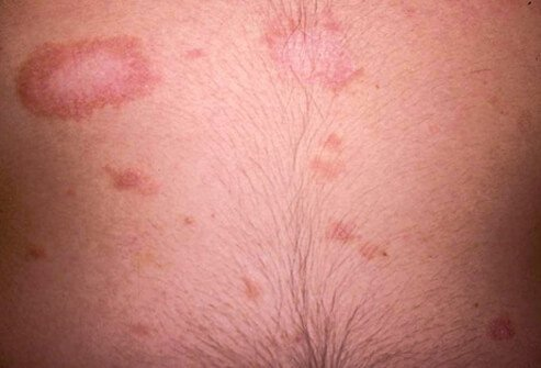 Picture of Pityriasis Rosea
