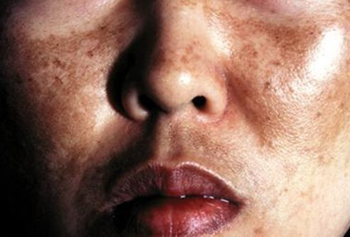 Pictures of Skin Pigment Problems - Addison's Disease