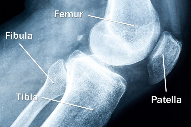 Four bones meet to form your knee: your thighbone (femur), shinbone (tibia), the smaller bone that runs alongside it (fibula), and kneecap (patella).