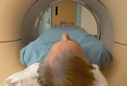 A man with Alzheimer's disease getting an MRI.