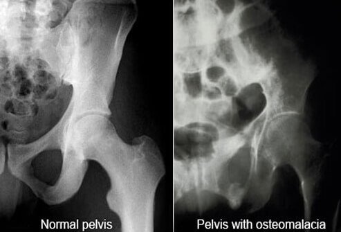 An x-ray of a pelvis with osteomalacia, a symptom of vitamin D deficiency.
