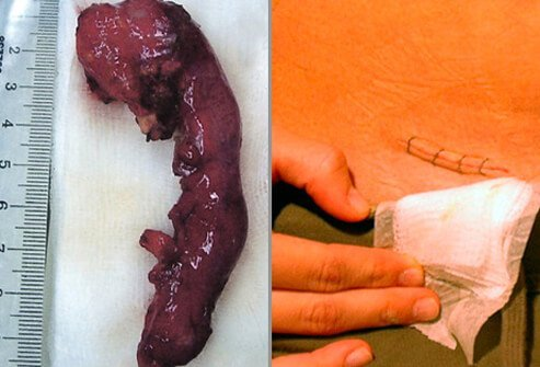 An example of an infected appendix that has been removed and the resulting incisional scar from an appendectomy.