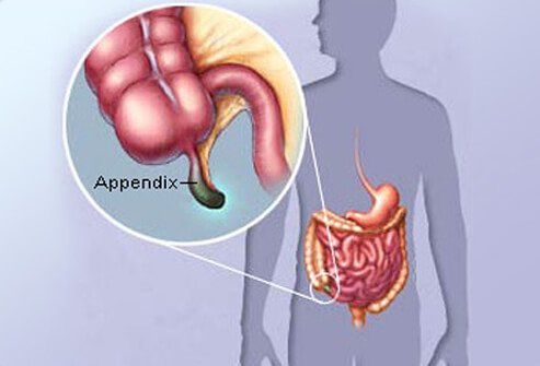 The appendix is a small, worm-like appendage attached to the colon.