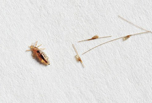 Apple cider vinegar is not effective for killing lice.