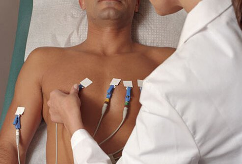 AFib ECG tracing will show the doctor what your heart is doing.